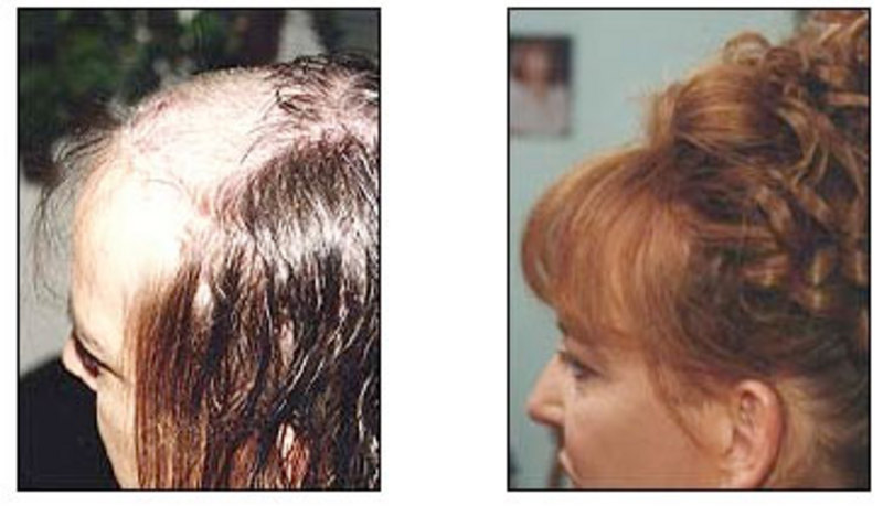 cranial hair prothesis Louticia grier, a hair loss specialist in solana beach, wanted to create an online platform where she could highlight the hair loss solutions of her custom cranial hair prosthesis for men, women, and.